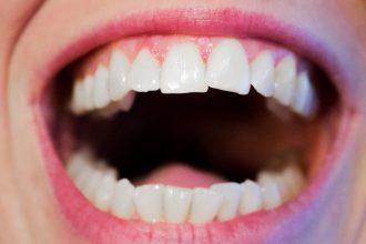 mejores-tiras-blanqueadoras-de-dientes
